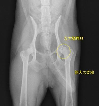 症 骨頭 特発 大腿 性 壊死